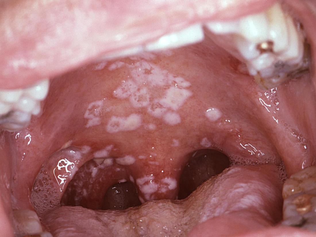Red spots on roof of mouth: Causes and other symptoms