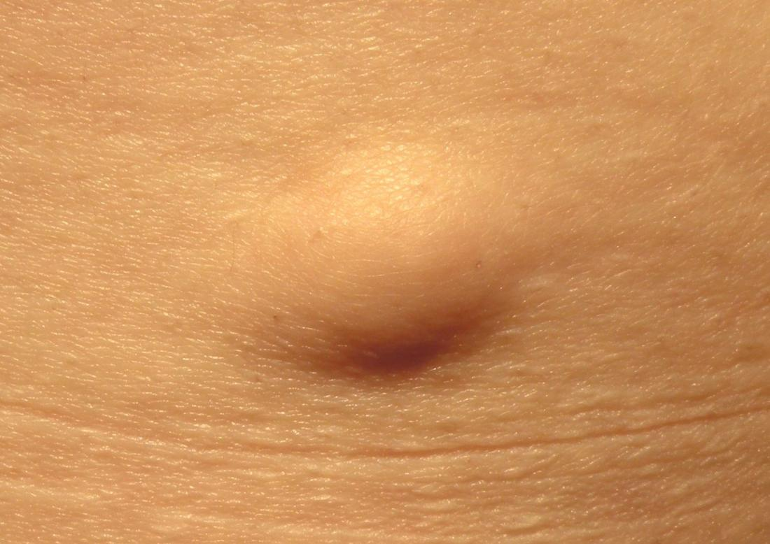 Hard Lump Under The Skin Causes And Pictures-2473