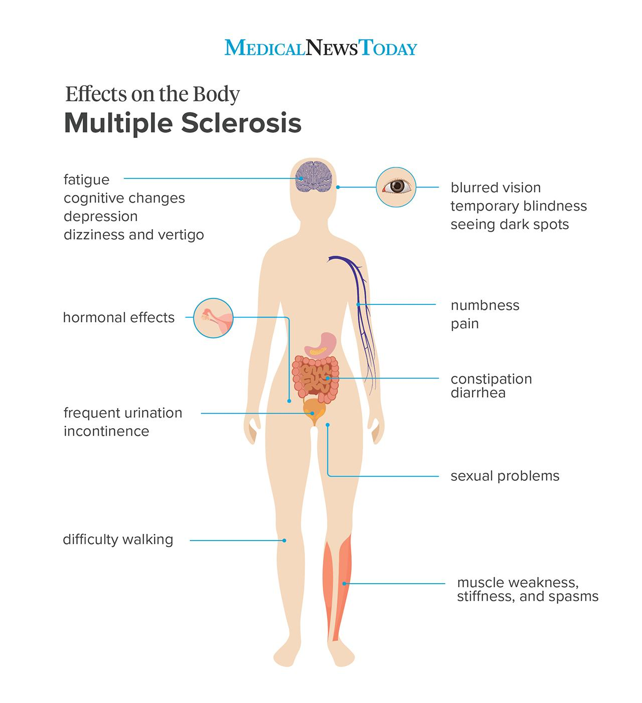 Effects on the body MS <br>Image credit: Stephen Kelly, 2019</br>