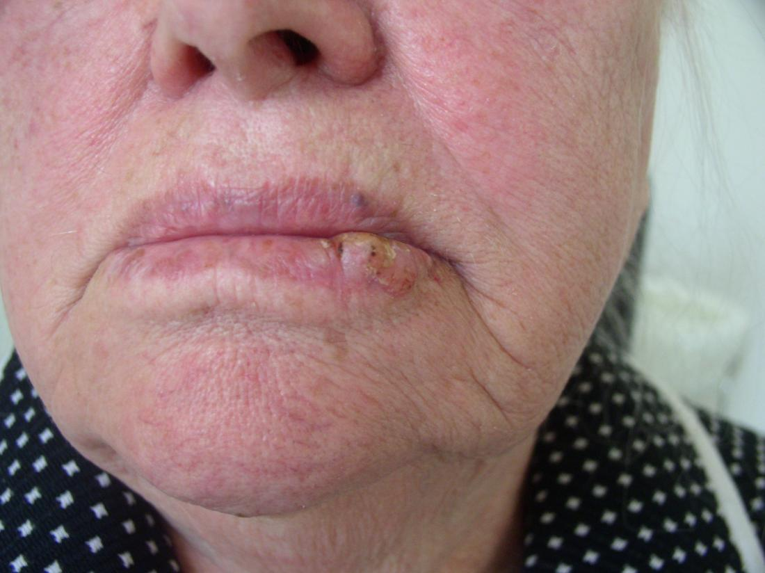 Lip cancer: What it looks like and what to do