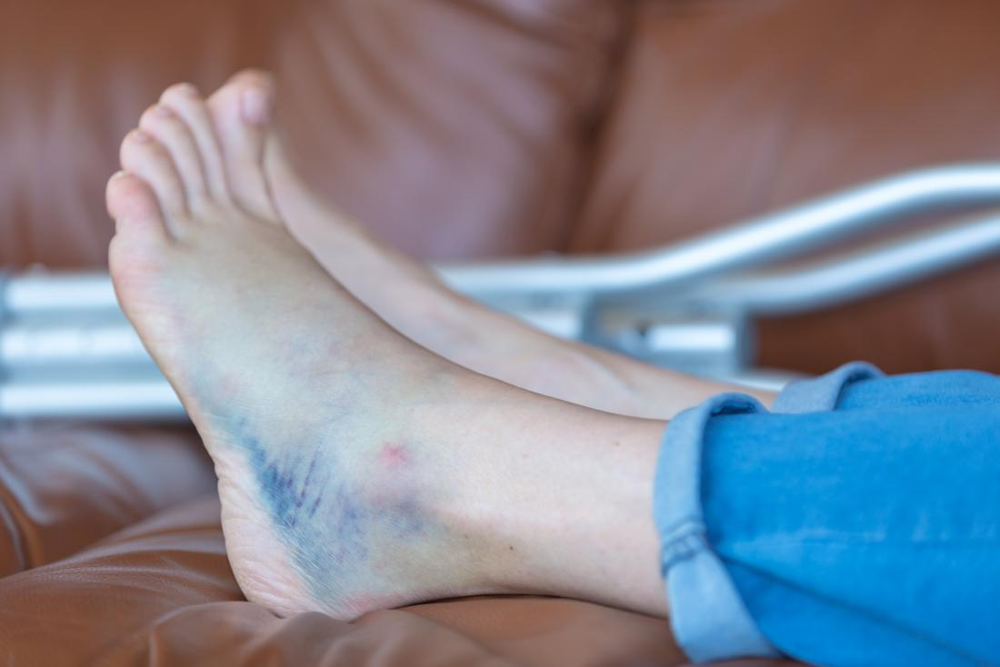 Bruised heel remedies and when to see a doctor