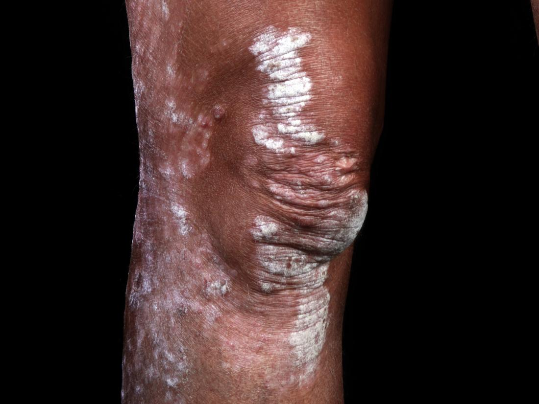 Psoriasis on black skin: Pictures, symptoms, and treatment