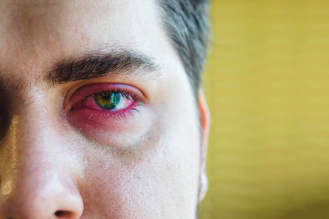 Sore eyelid: Causes, when to see a doctor, and treatment