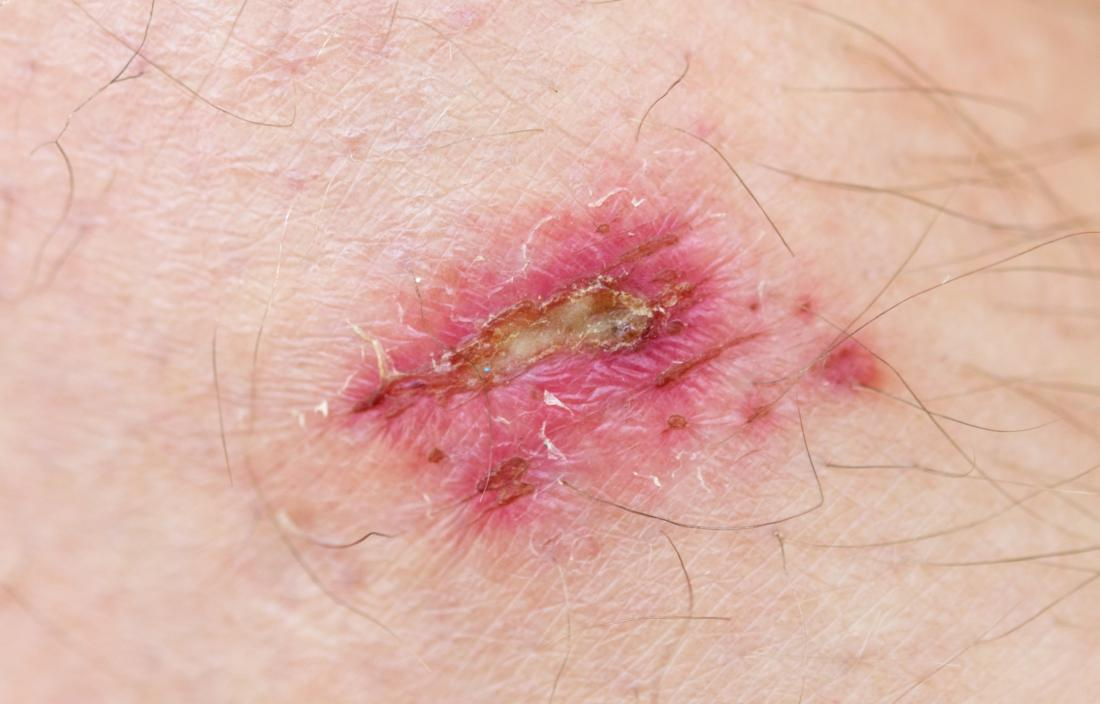 Dissolvable stitches: How long they last, care tips, and removal