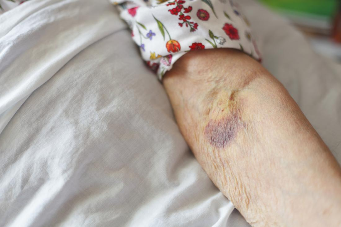 Blood Clot In Arm Symptoms Is It Dangerous Causes And Treatment
