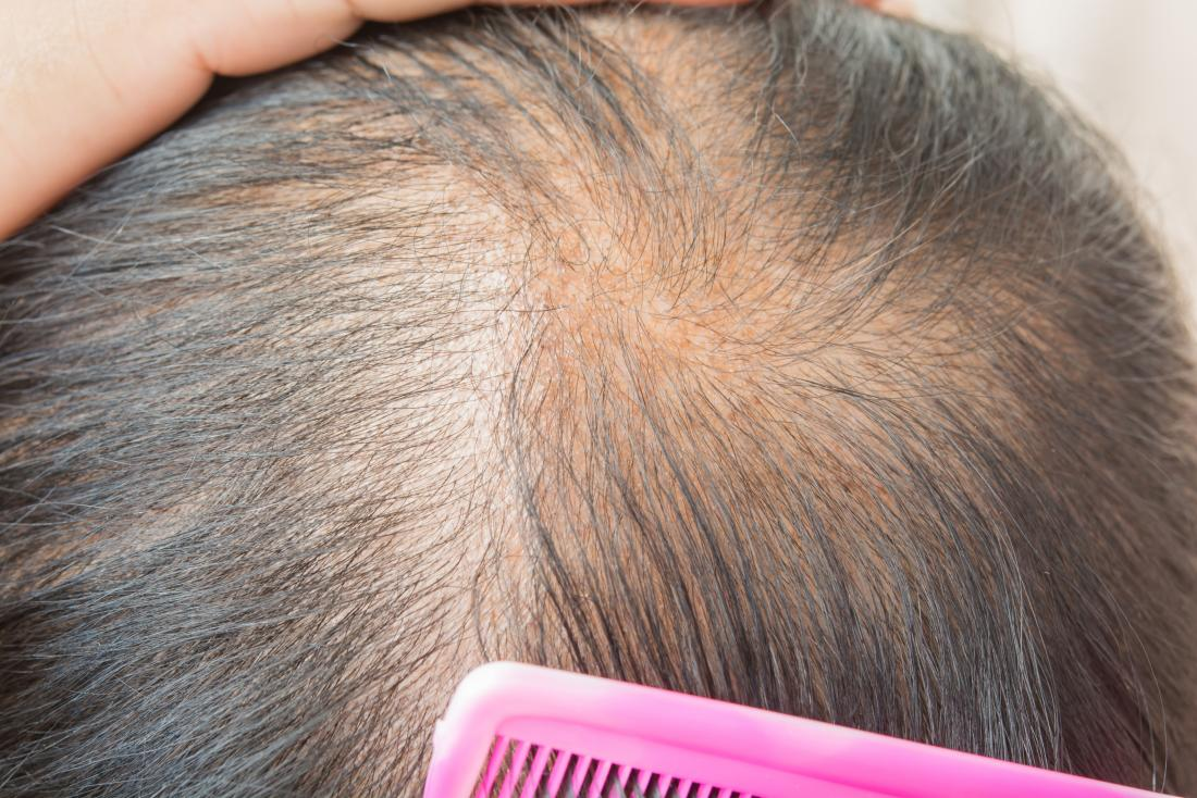 Thinning Hair Causes Types Treatment And Remes