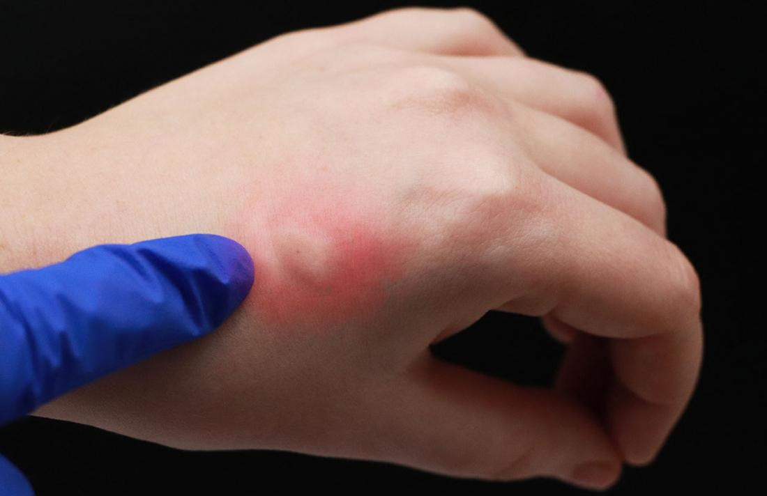 Skeeter syndrome causing allergic reaction to a mosquito bite on hand.