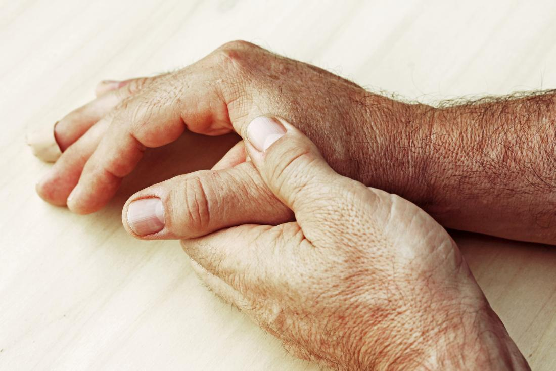 Can people die from rheumatoid arthritis?