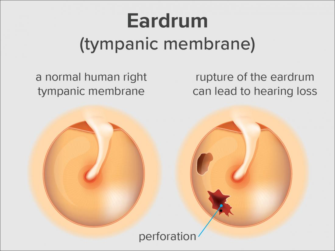 Ruptured Eardrum Symptoms Causes And Treatments