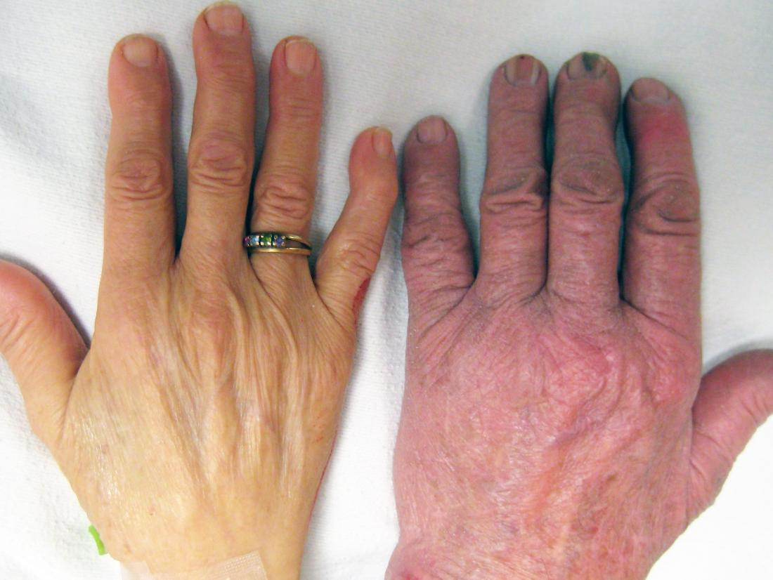 Causes of skin paleness in dark and light skin