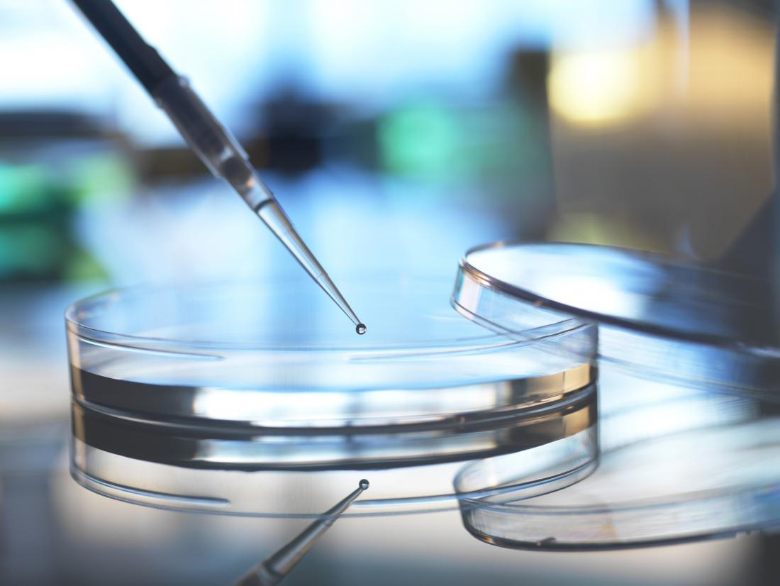 Stem cell therapy for rheumatoid arthritis: What to know