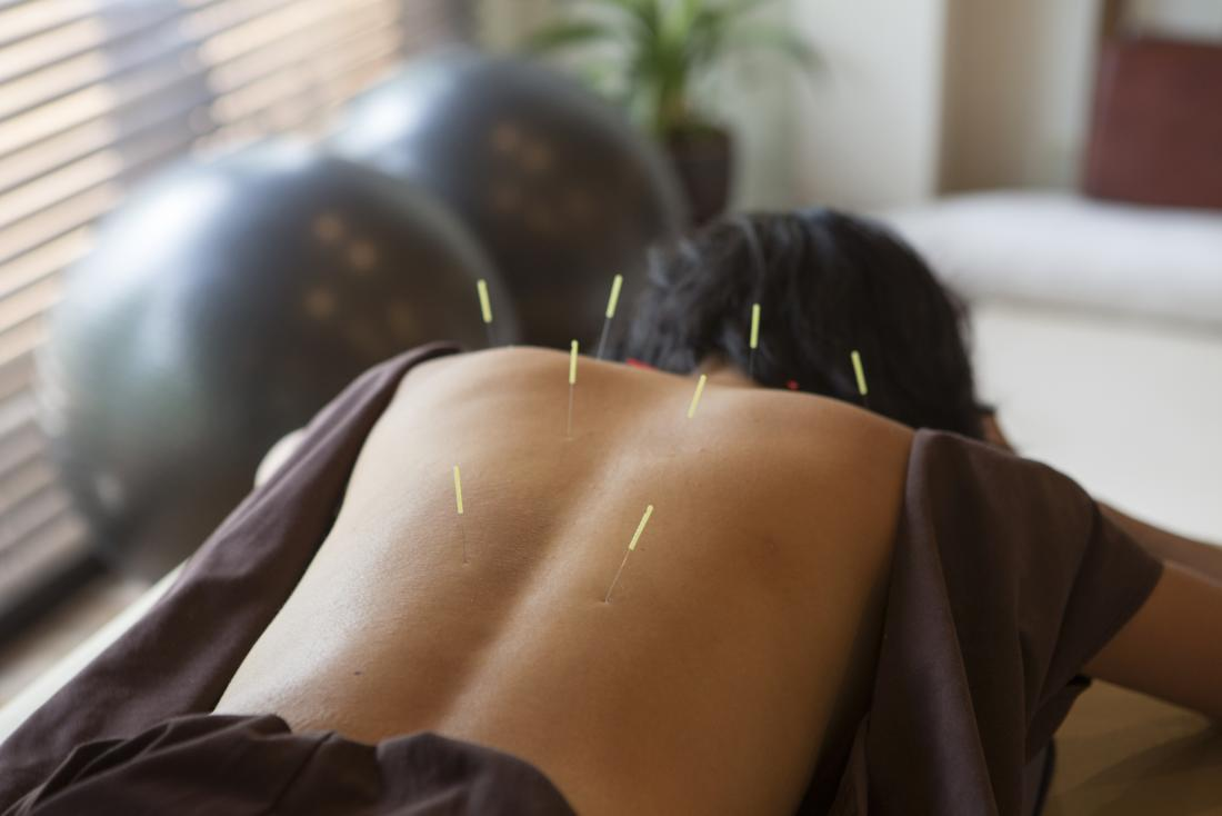 A woman getting acupuncture as a natural treatment for breast cancer