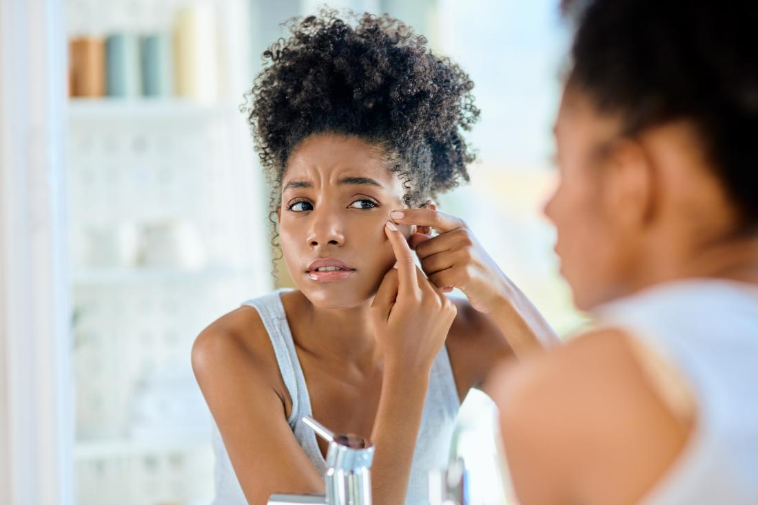 Natural Acne Treatments For Black Skin