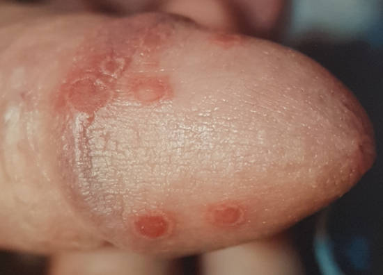 Penis of small bumps on rim Small white