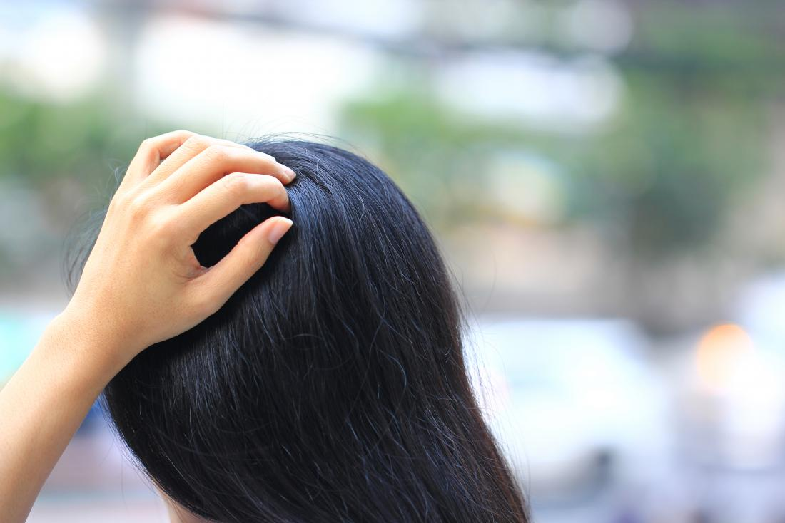 Tingling scalp: Causes, symptoms, and treatment