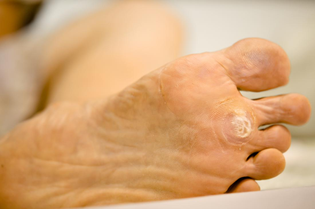 Plantar warts: Symptoms, causes, and treatment
