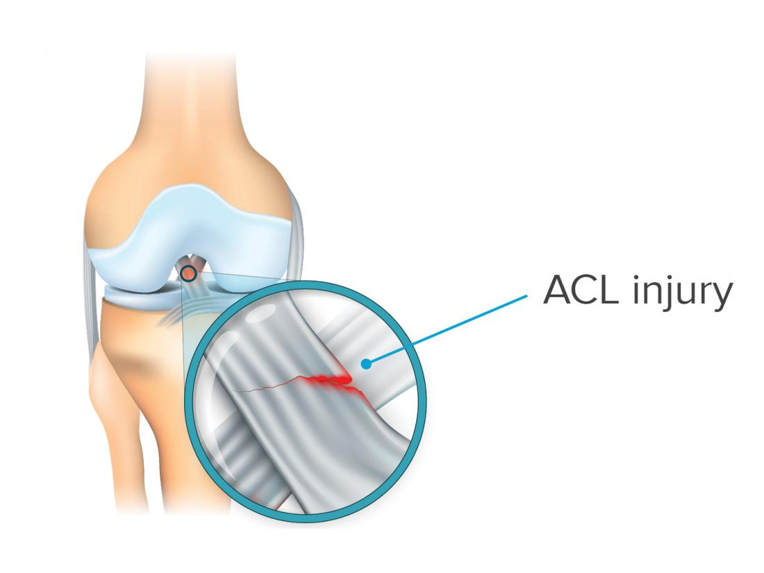 an infographic of an ACL injury