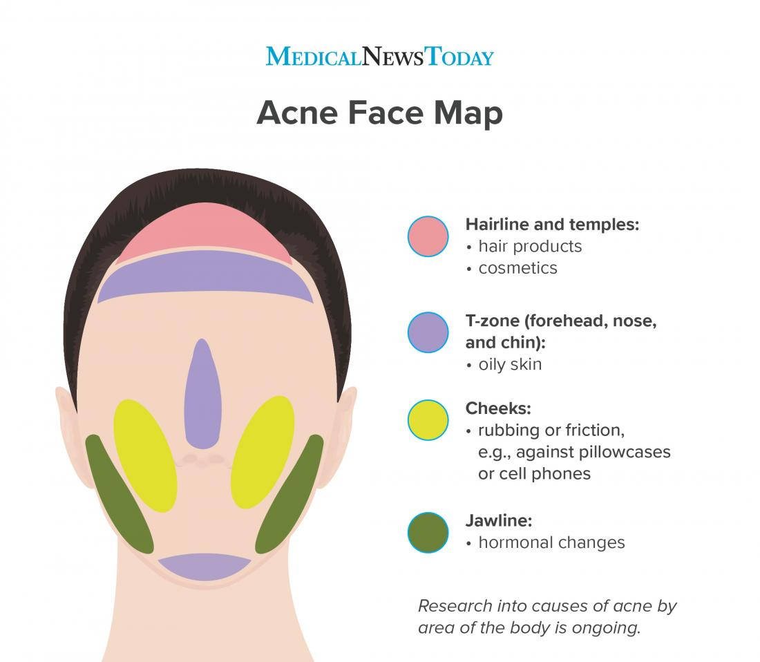 Graphic illustrating bad acne on face and chin.