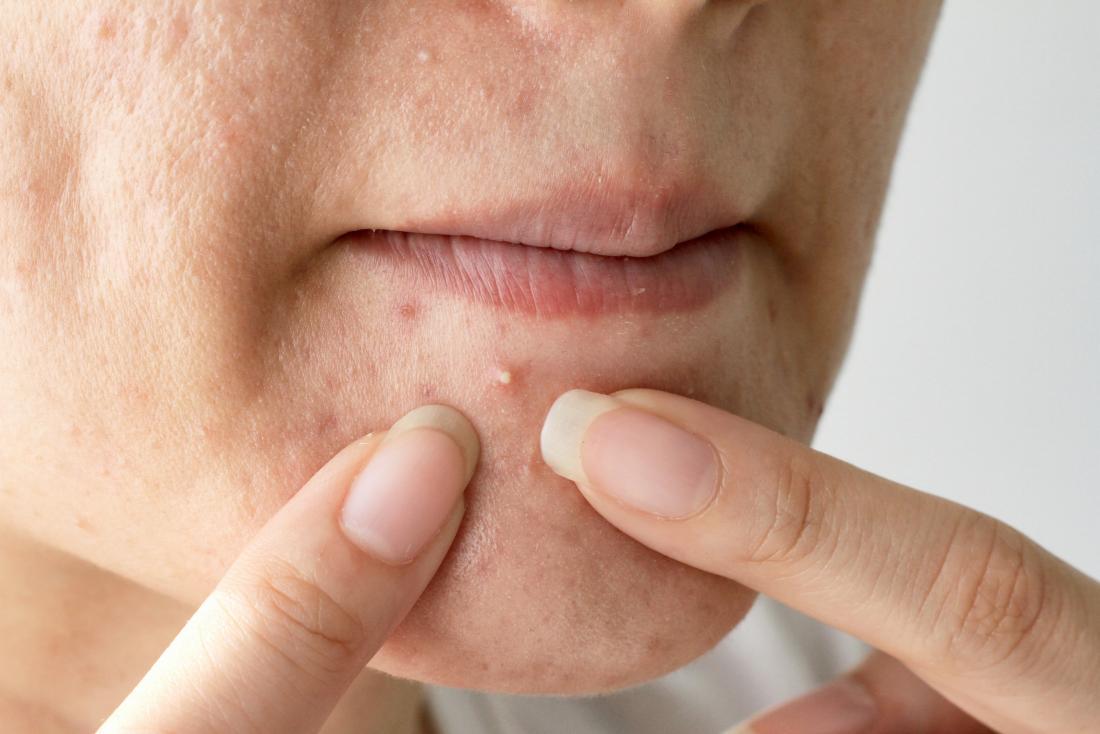 Dermatology on Flipboard by Medical News Today | Acne, Dermatology