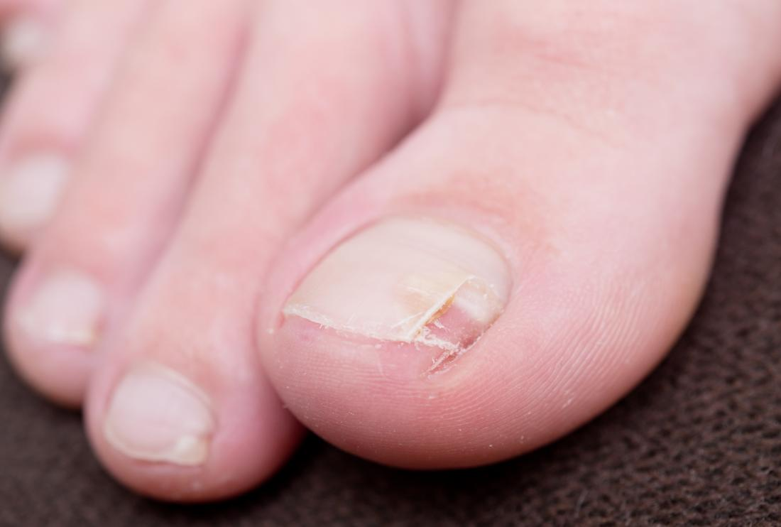 What to know about split nails
