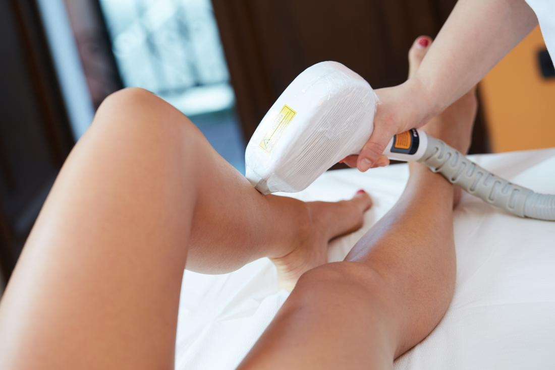 laser hair removal on legs