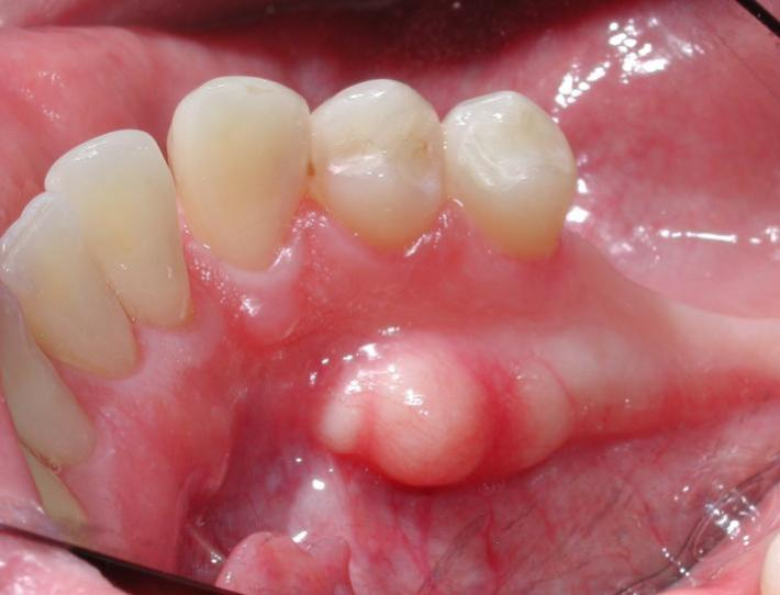 Bump on gums: Causes and how to treat them