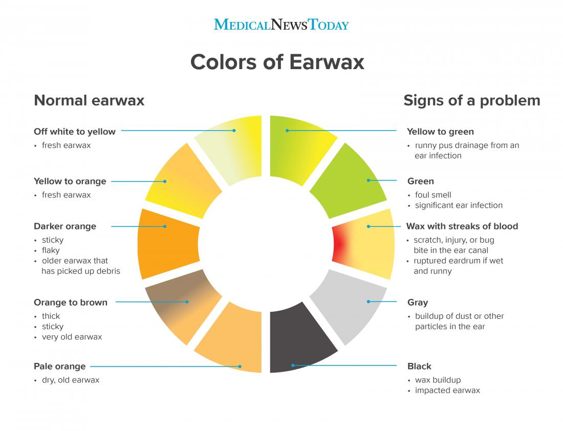 Earwax color chart: What to know