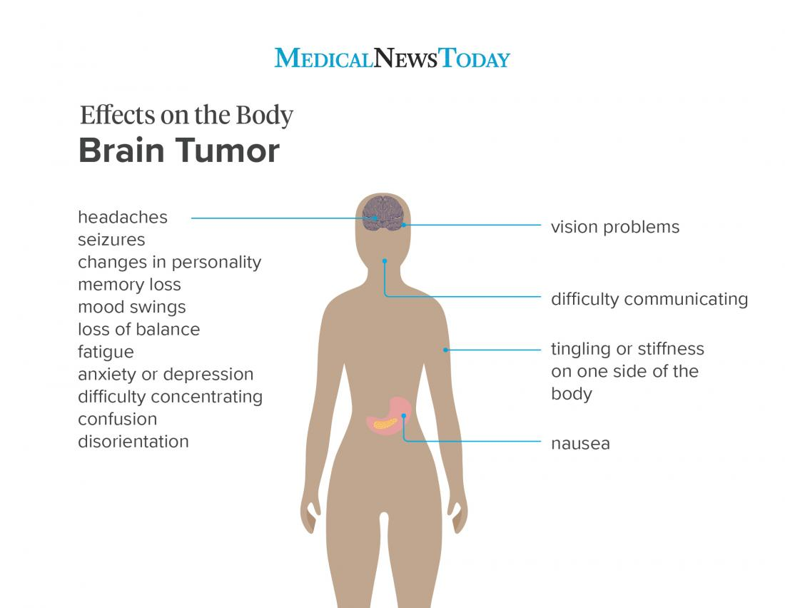 an infographic showing the effects on the body from a brain tumor