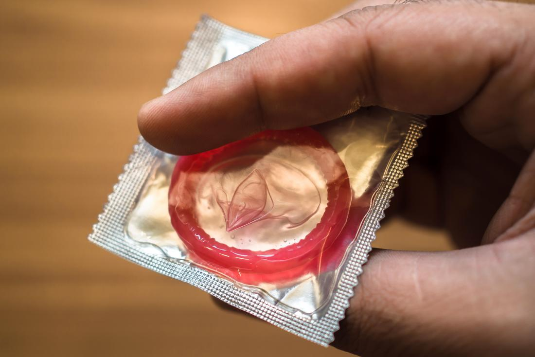 What to know about condoms and allergies