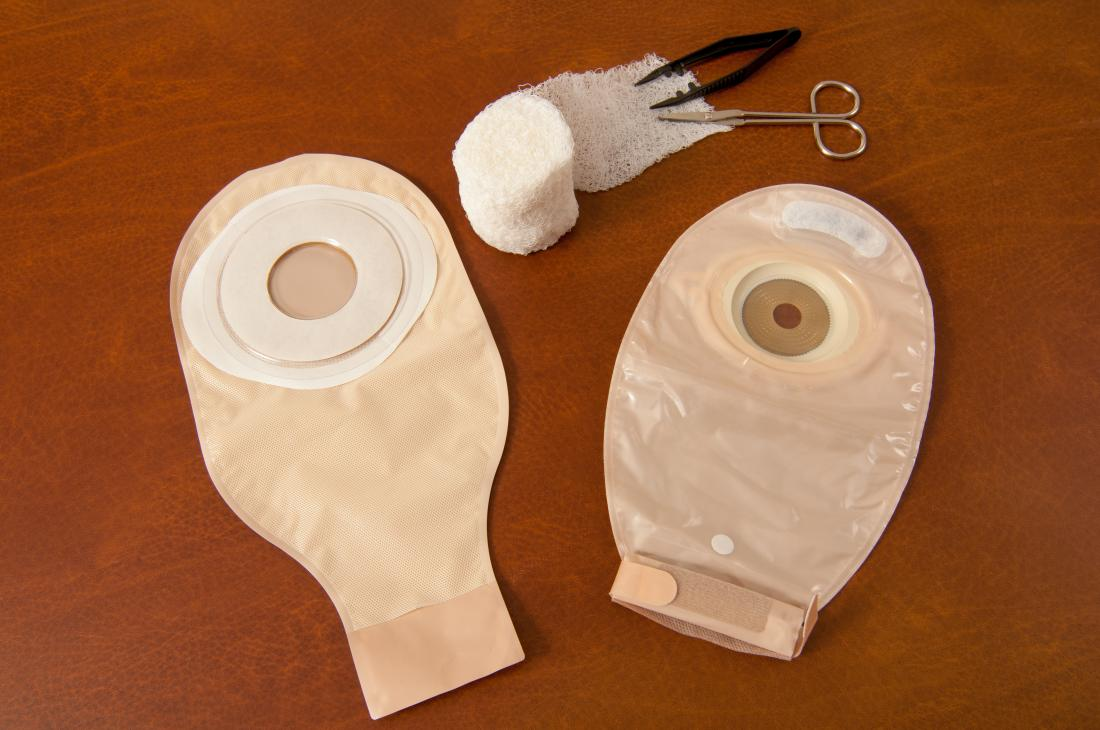 Colostomy Bag Types Uses And Living With One