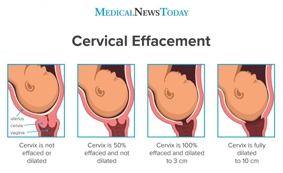a diagram showing the different stages of cervical effacement. Image credit: logika600's / Shutterstock.com.