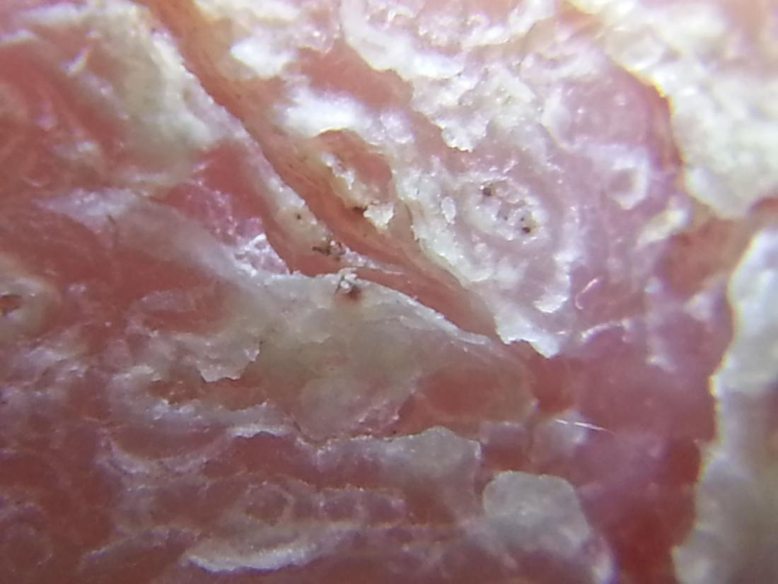 a patch of Atopic dermatitis close up. Image credit: Assianir, 2013