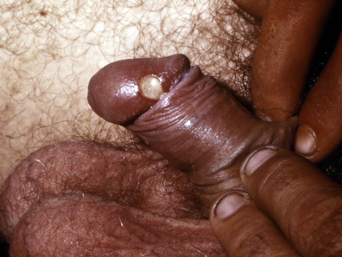 chancroid on the penis. Image credit: CDC/Joe Miller, 1974