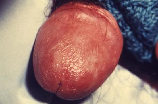 genital psoriasis on the penis image credit cdc susan lindsley 1976