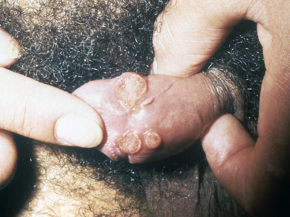 granuloma inguinale on the penis. Image credit: CDC/Joe Miller, 1974