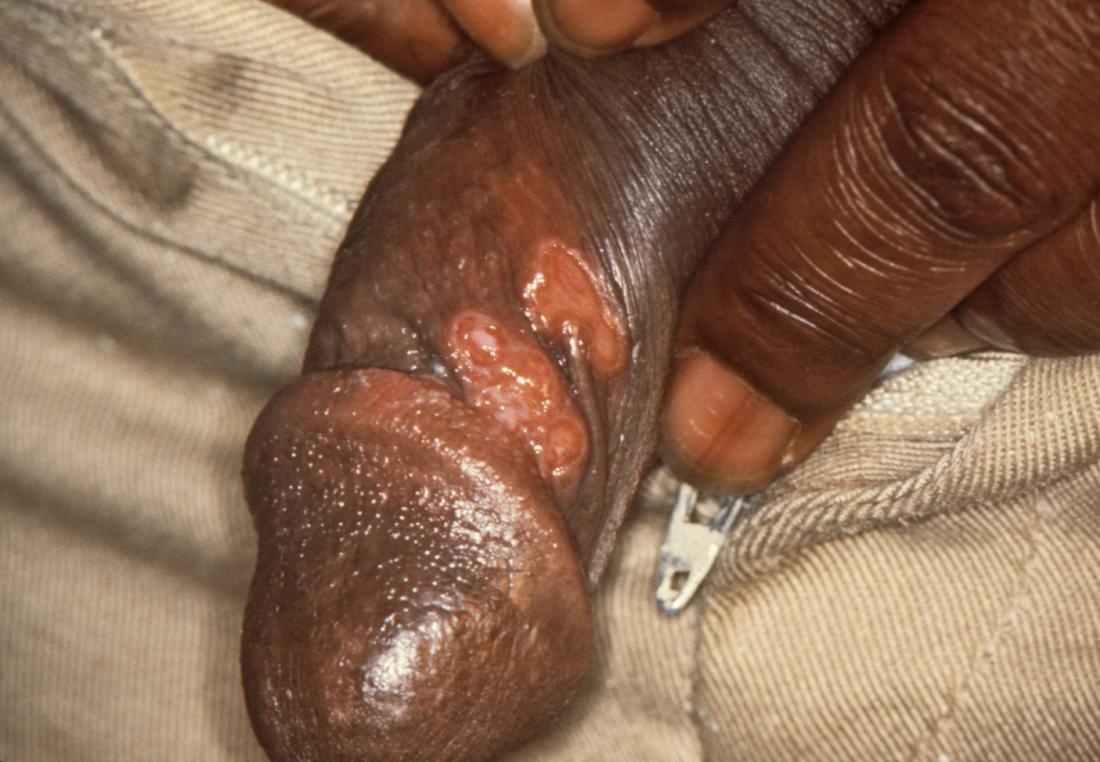 syphilis on penis image credit cdc robert sumpter 1967