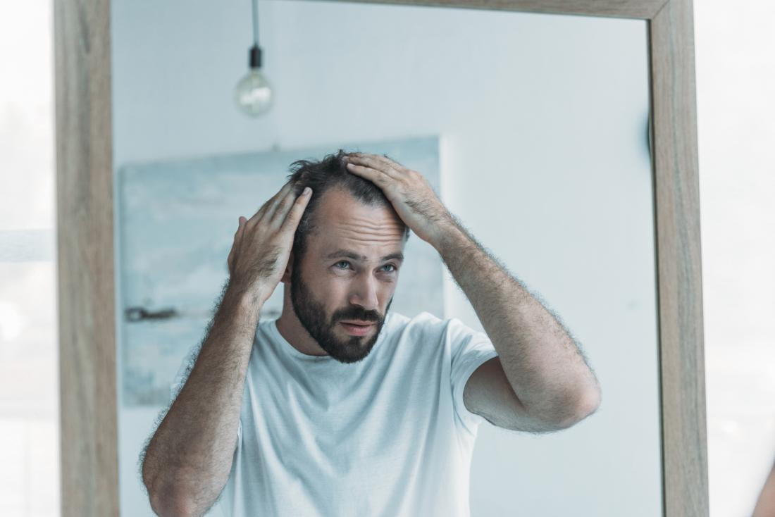 man checking for baldness in mirror