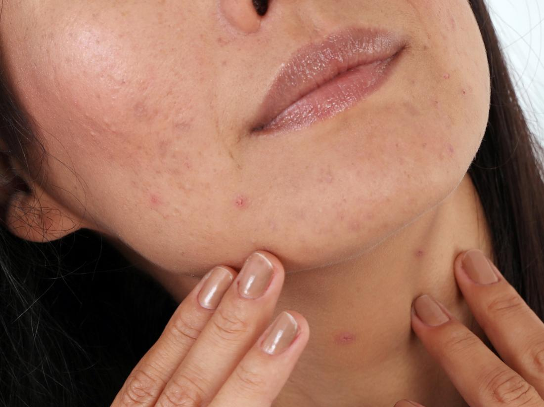 a woman with acne on her face.