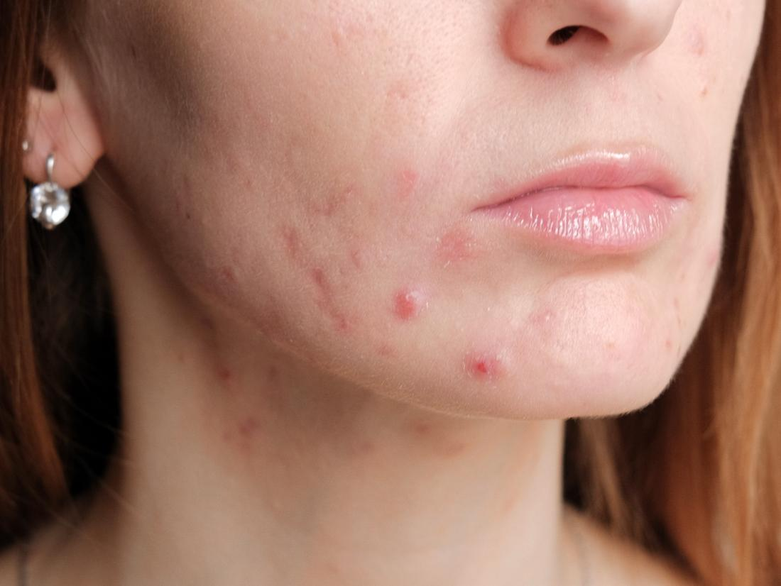 How to treat pregnancy acne