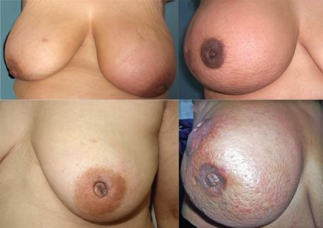 inflammatory breast cancer. Image credit: Cancer Med, 2013