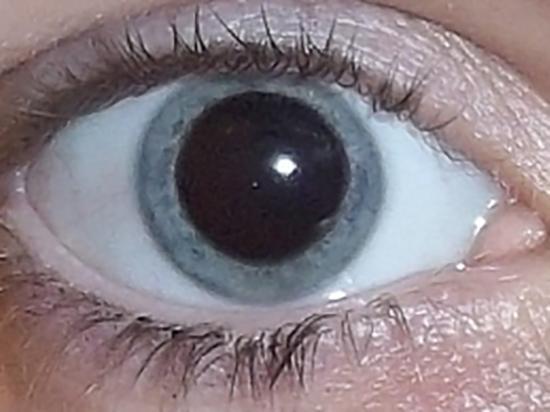 Cycloplegia caused by Cyclopentolate 1% instilled in both eyes. Image credit: Ilovebaddies, 2011