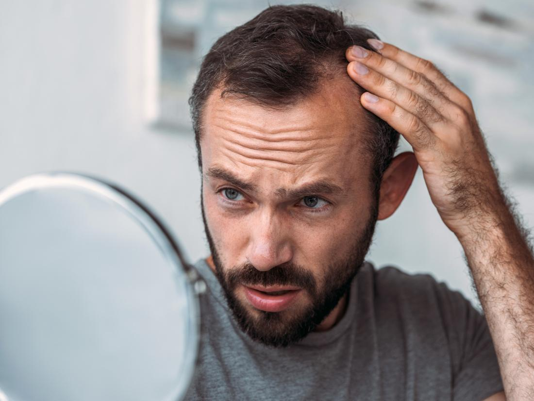 Thyroid and hair loss: Symptoms, treatment, and outlook article on causes of brittle hair