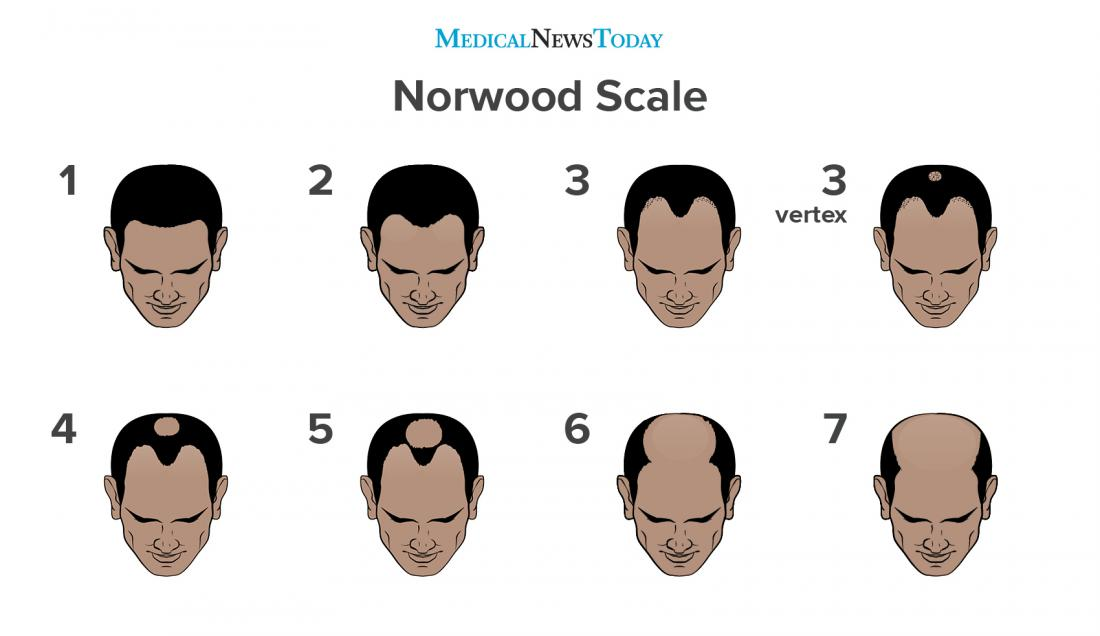 an infographic of the norwood scale.