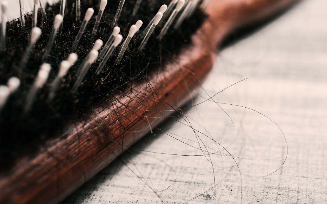 Why Is My Hair Falling Out 10 Causes Of Hair Loss