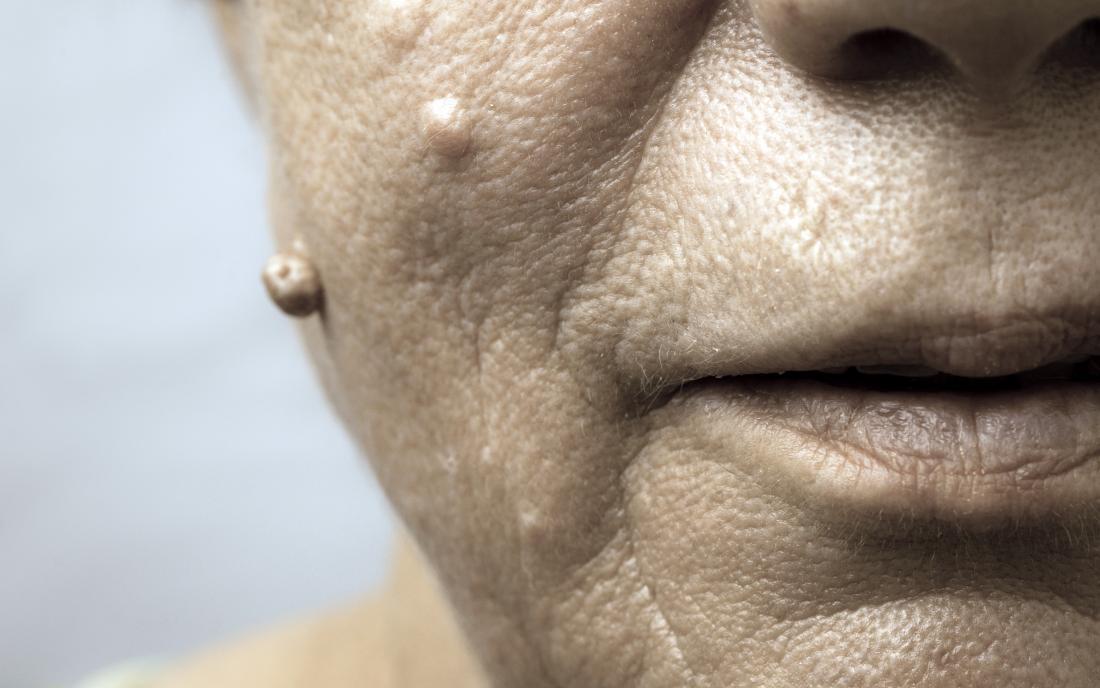 papiloame pe gât în tratamentul femeilor