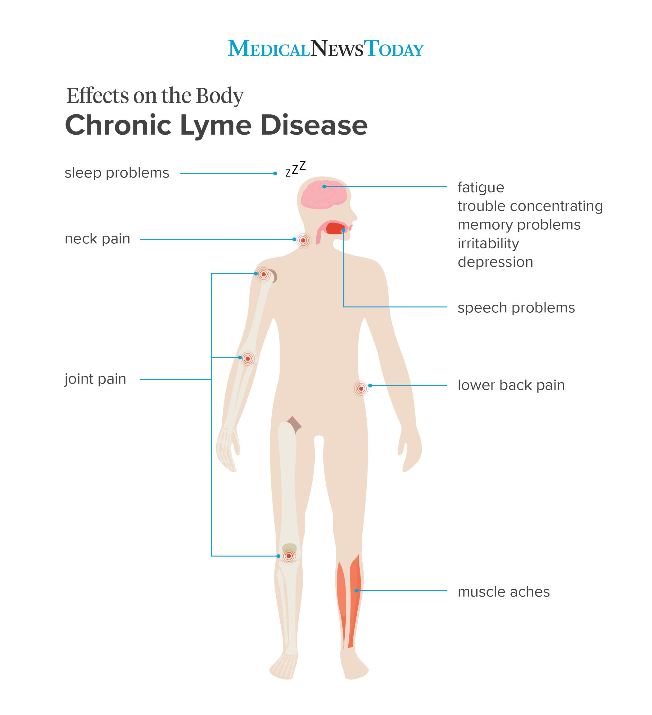 an infographic for chronic lyme disease
