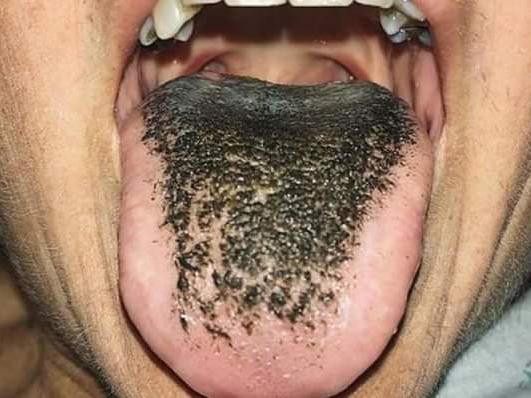 Black tongue: Causes, treatments, and home remedies