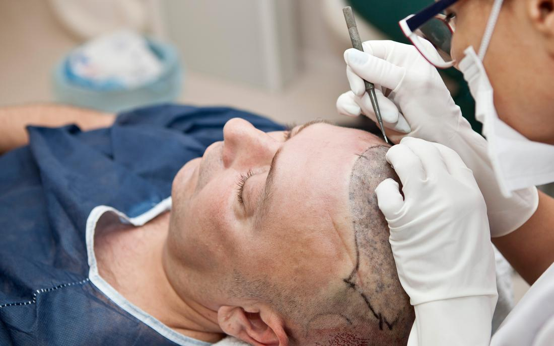 Ways to Select the Professional Hair Transplant Clinic