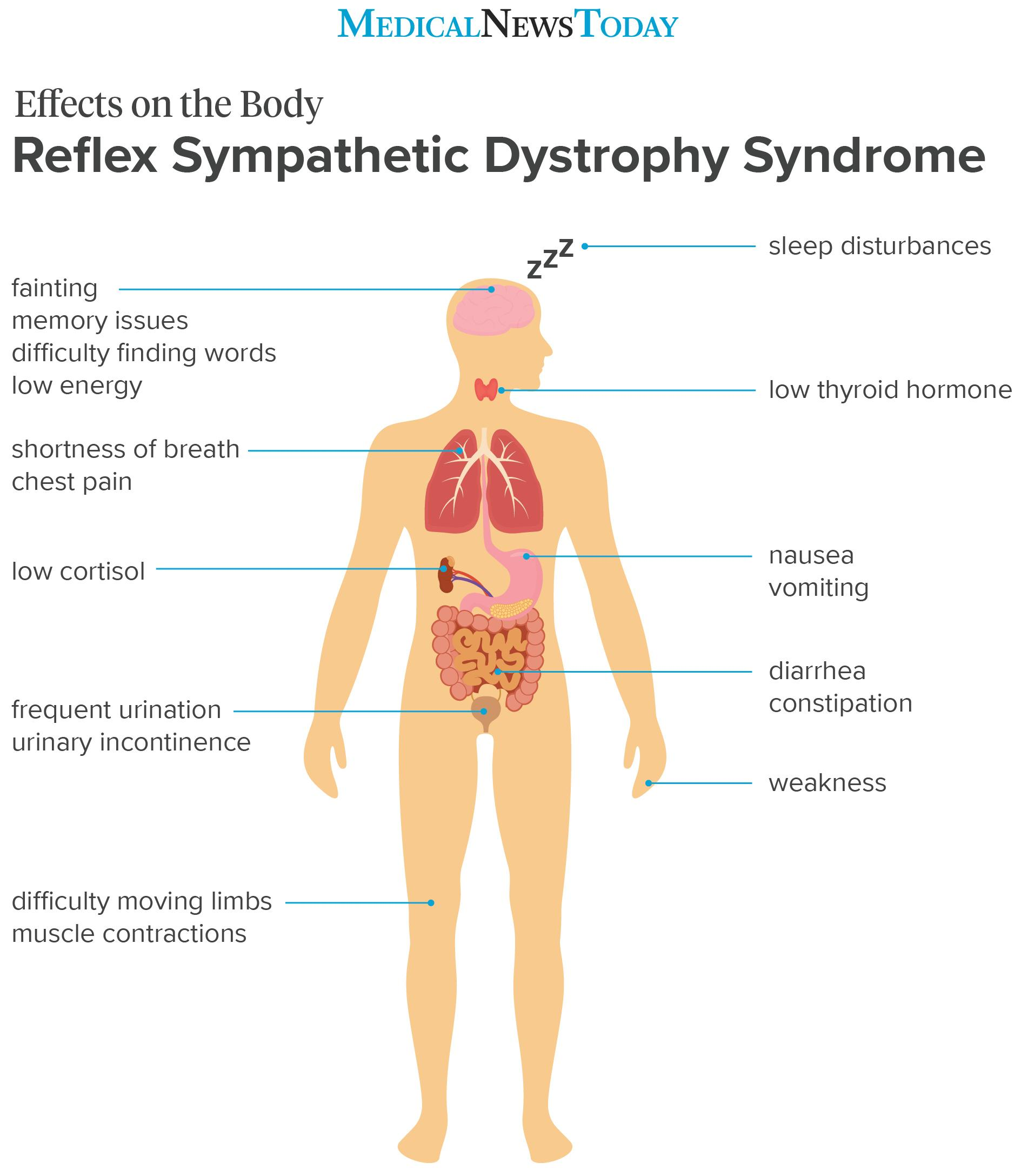 an infographic showing the effects on the body of RSD