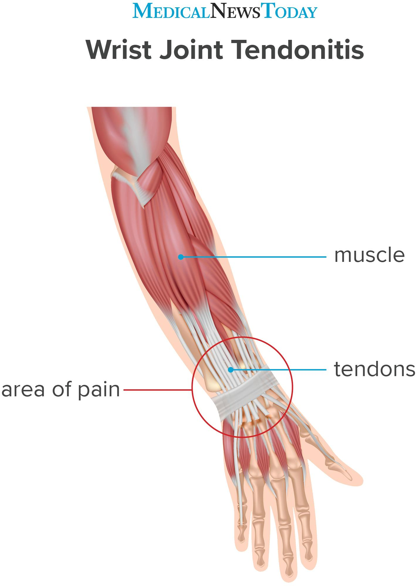 an infographic for Tendonitis of wrist